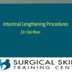 bowel-lengthening-procedures-dr-ori-ron