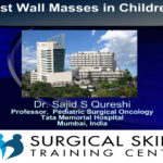 chest-wall-masses-in-childre-webmeetings