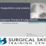 empyema-and-lung-abscess-webmeeting-dr-von-delft