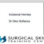 incisional-hernias-webmeeting