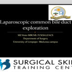 laparoscopic-common-bileduct-exploration-webmeeting