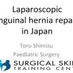 laporoscopic-inguinial-hernia-repair-meeting