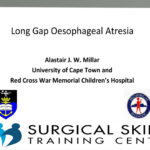 long-gap-oesophageal-atresia-prof-millar