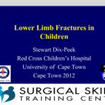 lower-limb-fractures-webmeeting