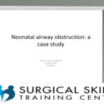 neonatal-airway-obstruction-a-case-study-webmeeting-dr-van-niekerk