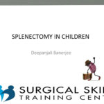 splenectomy-indications-and-surgery-dr-rautenbach