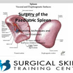 splenectomy-webmeeting