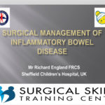 surgical-management-of-inflammatory-bowel-disease