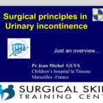 surgical-management-of-urinary-incontinence