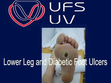 UFS Nursing School – Lower Leg and Diabetic Foot Ulcers