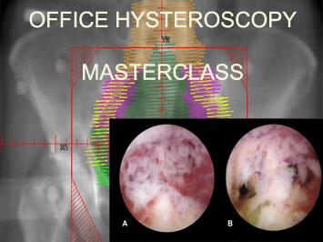 OFFICE HYSTEROSCOPY MASTERCLASS