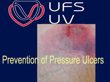 UFS Prevention of Pressure Ulcers