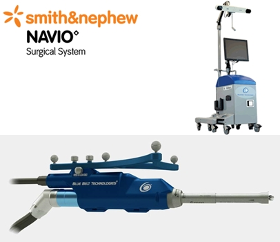 Smith & Nephew Navio Days
